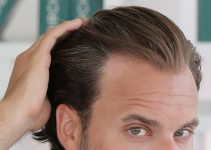 diffuse thinning hair causes hair loss preventing baldness treating balding head