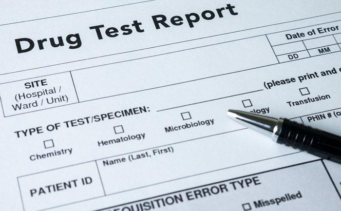 employee drug test process employers drugs testing procedures